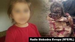 Na lijevoj strani fotografija Iman koju je njena majka Ilda poslala nani Samri krajem 2018. godine, a na desnoj fotografija djevojčice za koju je više izvora reklo da je Iman nakon što je povrijeđena tokom oslobađanja Baguza od militanta IS-a.