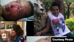 Meseret Nigusse after and before the accedent