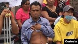 Las víctimas del enfrentamiento con la policía federal y estatal en Nochixtlán, en Oaxaca, México pidieron garantías ante la Comisión Interamericana de Derechos Humanos mientras luchan porque se haga justicia sobre su caso.