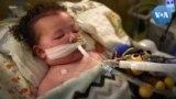 Em bé 2 tuổi chiến đấu với tử thần COVID