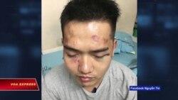 HRW yêu cầu VN điều tra vụ trấn áp đêm nhạc Nguyễn Tín