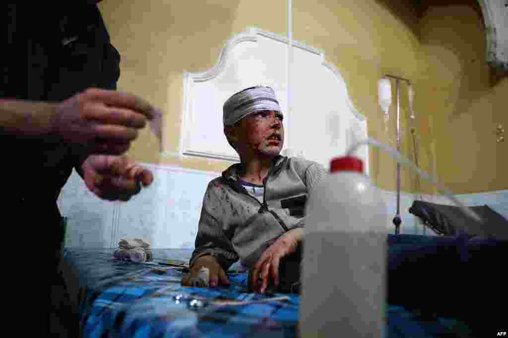 A wounded Syrian boy receives treatment at a makeshift hospital following the reported government shelling of the rebel-held town of Douma, east of the Syrian capital Damascus.