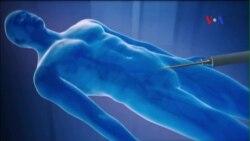 Siêu âm cường độ cao được dùng để diệt khối u ung thư