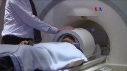 Avances médicos en la lucha contra la demencia