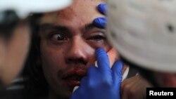 La policía chilena acordó suspender el uso de balines para controlar protestas después de que un estudio reveló que los proyectiles podrían contener sustancias nocivas como plomo y sólo una pequeña porción de goma.