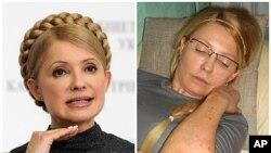 Hình trái: Cựu Thủ tướng Ukraina Yulia Tymoshenko ngày 29/12/2009, bên phải là hình bà Tymoshenko với các vết bầm tím trên cơ thể ở nhà tù Kachanovskaya, 25/4/2012