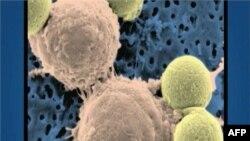 Kancerozne ćelije