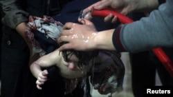 지난 8일 시리아 수도 다마스쿠스 인근 반군 장악지역인 두마에서 화학 공격을 받은 아이가 병원에서 치료를 받고 있다.