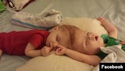 این عکس را مادر دو کودک که از سر بهم چسبیده اند، در فیس بوک خود منتشر کرد.