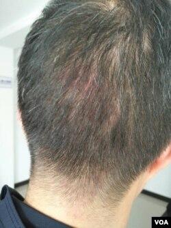 北京公民活跃人士李蔚被杭州警察打伤。(推特图片)