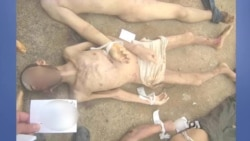 Syrian Defector Leaks Shocking Photos of Torture Victims
