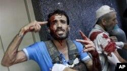 부상을 입고 알포레 병원으로 후송돼 치료를 받고있는 시리아 반정부군