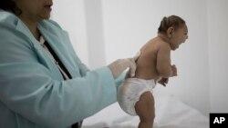 Bayi lahir dengan microsephaly (Foto: dok.)