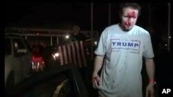 Pristalica Donalda Trampa posle protesta u Kaliforniji, 28. april 2016.