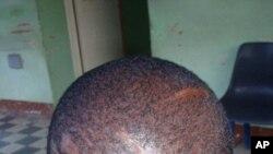 Vítima com cortes da cabeça