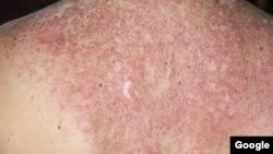 Peau d'une personne atteinte de de lupus rhumatoïde.