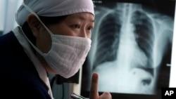 결핵 의심 환자의 흉뷰 X-레이 사진. (자료사진)