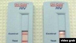 HIV檢測