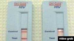 ການກວດເບິ່ງ ການຕິດເຊື້ອ HIV