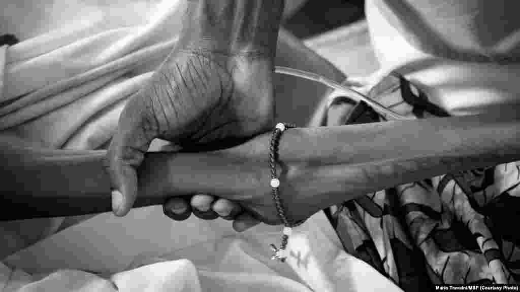 Le bras de Julia, une patiente très atteinte du virus, Kinshasa, RDC.