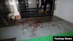 2일 서울 지하철 2호선 상왕십리역에서 잠실 방향 열차가 추돌한 가운데, 사고현장 바닥에 부상자들의 피가 묻어있다.