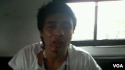 La agresión se produjo cuando Saleh participaba de la Operación Libertad, en Barinas.