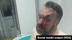 Novinar Stefan Cvetković, fotografija koju je priložio za medije, tvrdeći da je pretučen, Foto: Glas Amerike