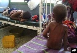 A malnourished child from southern Somalia sits on the bed at Banadir hospital in Mogadishu, Somalia.