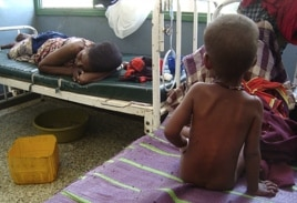 A malnourished child from southern Somalia sits on the bed at Banadir hospital in Mogadishu, Somalia.