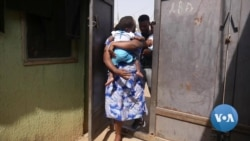 Nigeria's Separated Conjoined Twins Live Normal Lives