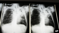 FILE - X-rays of a tuberculosis patient at A. G. Holley Hospital in Lantana, Florida.
