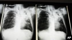 Raios-X de um doente com tuberculose num hospital do estado americano da Florida.