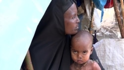 Cholera Victims at IDP Camp in Somalia