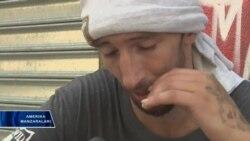 Opioidlar suiiste'moli kuniga 91 amerikalikni o'ldiradi