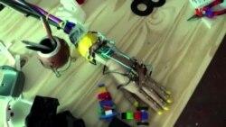 3D çapı ilə hazırlanan protezlər