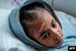 Arsema Berha, umri miaka 9, akiwa katika hospitali ya rufaa ya Ayder mji mkuu waTigray, Mekele, Februari 25, 2021, baada ya kuumizwa katika vita iliyozuka Tigray.