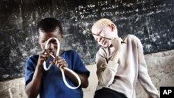 Un albinos à droite et son ami