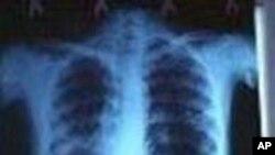 TB ရွိသူမ်ားထံေရာက္ေရး နွင့္ ေဆးယဥ္ပါးမႈ႔ ျပႆနာ