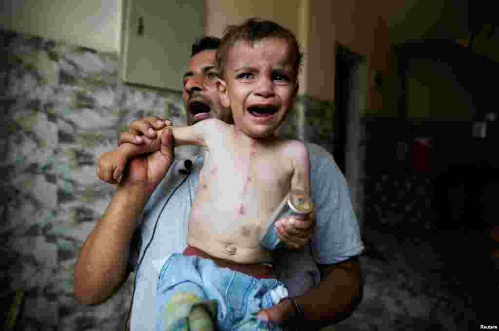 Seorang anak balita dengan bekas luka jahitan operasi jantung menangis sambil memegang kaleng gas air mata yang dilemparkan oleh polisi anti huru-hara Mesir, saat terjadi bentrokan dengan warga distrik al-Warraq di kawasan Sungai Nil.