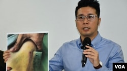 香港民權觀察成員王浩賢呼籲港府就警方6-12清場行動成立獨立調查委員會。(美國之音湯惠芸拍攝)