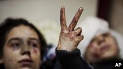 Bé gái Hana, 12 tuổi giơ dấu hiệu chiến thắng bên cạnh em gái Eva 13 tuổi, bị thương sau vụ pháo kích của quân đội chính phủ vào thị trấn Idlib, phía bắc Syria