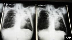 Снимок легких человека, больного лекарственно-устойчивым туберкулезом