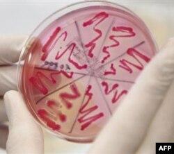 E.coli bakteriyasi