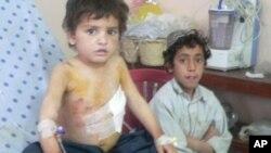 ہلاک یا زخمی افغان بچوں کی تعداد میں اضافہ