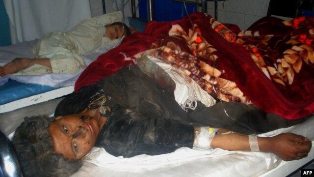 16일 아프가니스탄 서부 파라주 도로변 폭탄 테러로 부상을 입은 민간인.