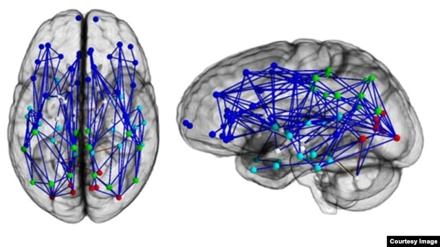 Brain networks show increased connectivity in males and females.(University of Pennsylvania)