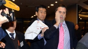 U.S. ambassador to South Korea Mark Lippert, right, covers a slash on his face as he leaves the Sejong Cultural Institute in Seoul, after he was attacked by an armed assailant, in Seoul, March 5, 2015.