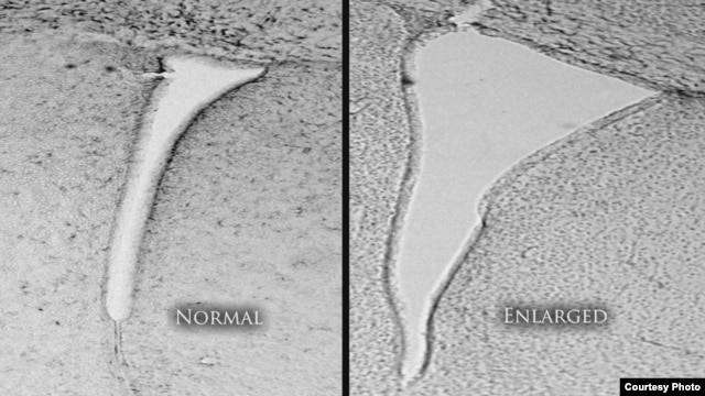 A mouse brain that was exposed to polluted air shows an enlarged lateral ventricle (right) compared with a mouse whose air was clean and filtered. Enlarged lateral ventricles are associated in humans with autism and schizophrenia. (University of Rochester Medical Center)