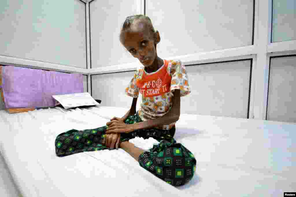 Saida Ahmad Baghili, 18, who is affected by severe acute malnutrition, sits on a bed at the al-Thawra hospital in the Red Sea port city of Houdieda, Yemen.
