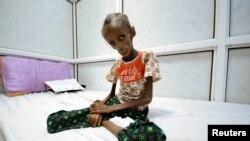 این دختر ۱۸ ساله یمنی از سوءتغذیه شدید رنج میبرد و در بیمارستانی در شهر حدیده بستری است. ۲۴ اکتبر ۲۰۱۶